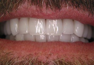 Bright white teeth after