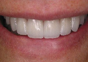 Properly spaced teeth after