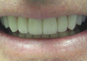 Repaired front tooth after