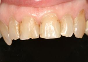 Discolored decayed and damaged teeth before