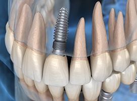 dental implant in a patient's upper arch