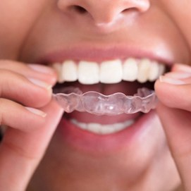 A woman wearing Invisalign