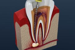 Illustration of a root canal procedure