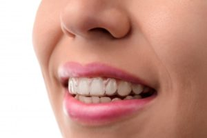 woman smiling wearing Invisalign braces